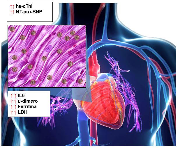 Danno al miocardio
